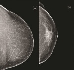 Breast_Density_hires_NEW (003)